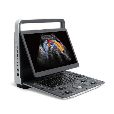 Echographe Portable Couleur Abordable SonoScape E2